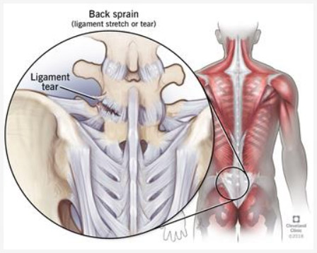 back sprain illustration